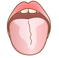 舌の汚れ放置ダメ!絶対!